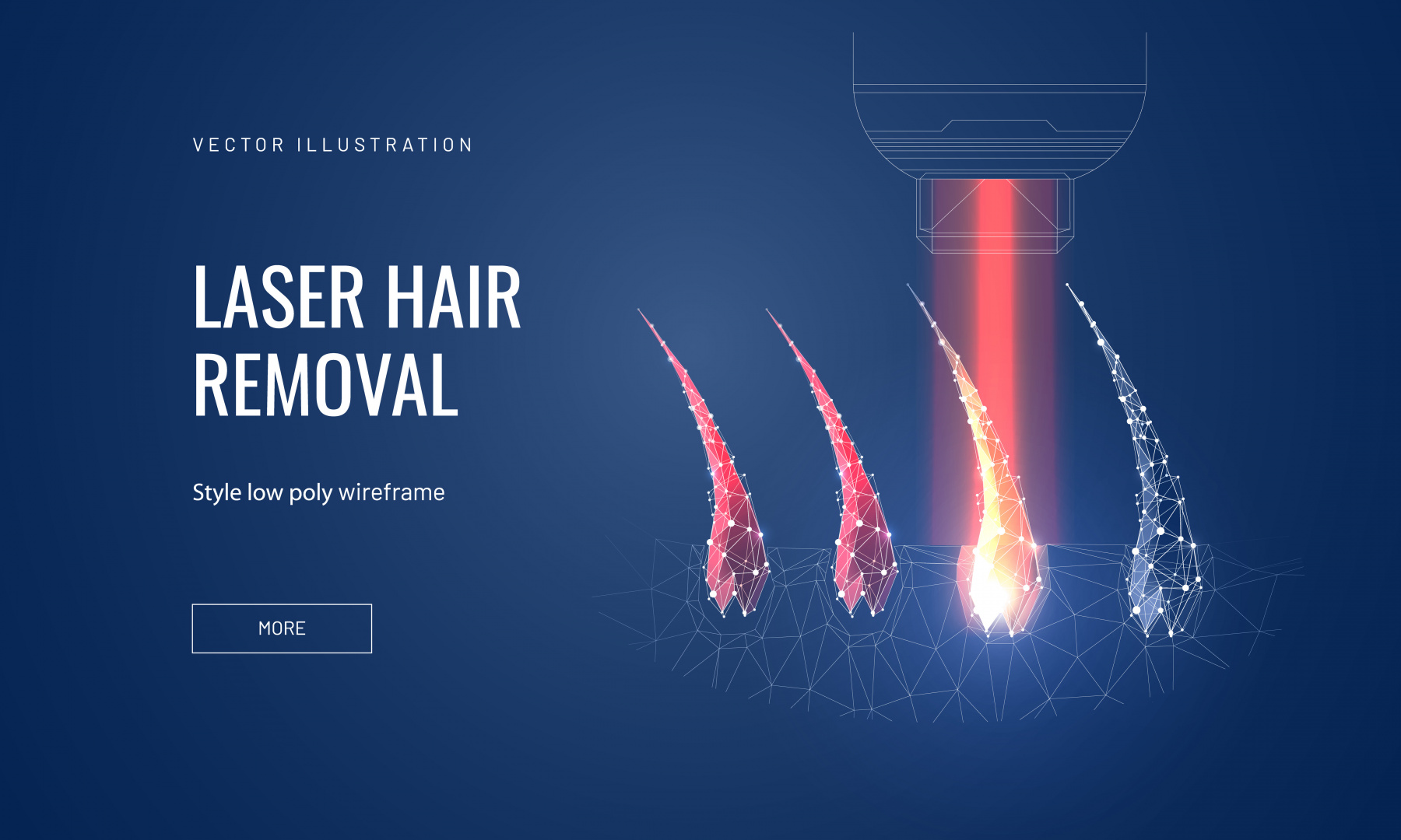 Laser hair removal concept in polygonal futuristic style for banner. Vector illustration of a demonstration of the process of laser epilation, hair follicles with lus from the apparatus