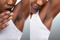 Before And After Concept Of Underarm Hair Removal